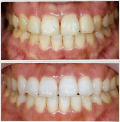 白い歯になるホワイトニング