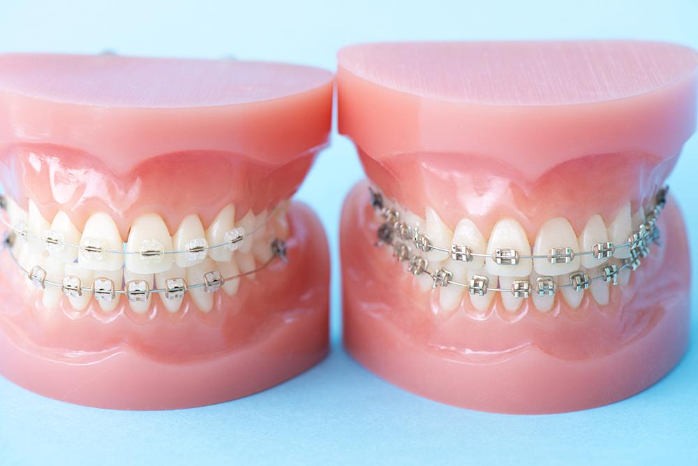 噛み合わせと骨格を考慮した、調和のとれた矯正歯科治療