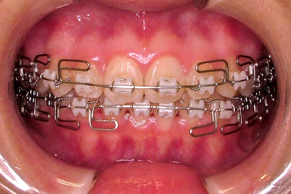 歯を抜かないマルチループテクニックで治療